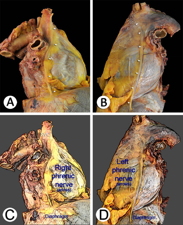 Lateral right and left views of the pericardium